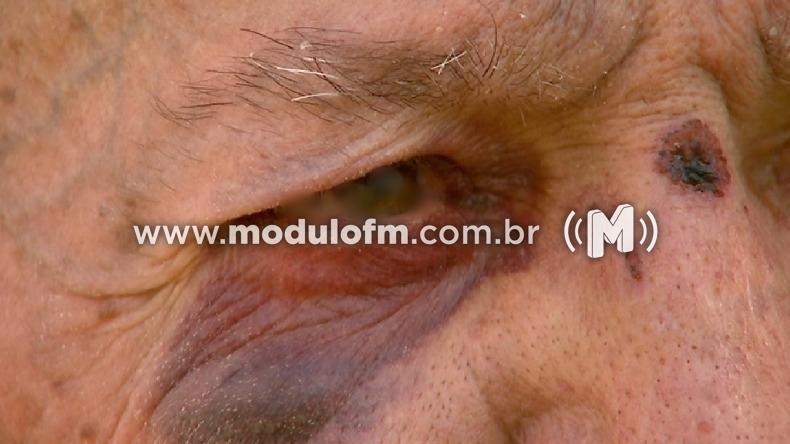 Idoso com problema de locomoção é agredido por síndico de condomínio na represa de Nova Ponte
